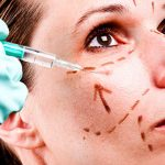 What are the most common facial cosmetic surgeries?